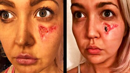 'Voice' Star Shares Photo Of Gruesome Spider Bite Recovery